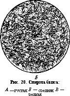 Зернистый эпителий в сперме